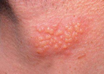 Bệnh sùi mào gà ở nam giới có triệu chứng gì? Bí quyết phòng tránh hiệu quả