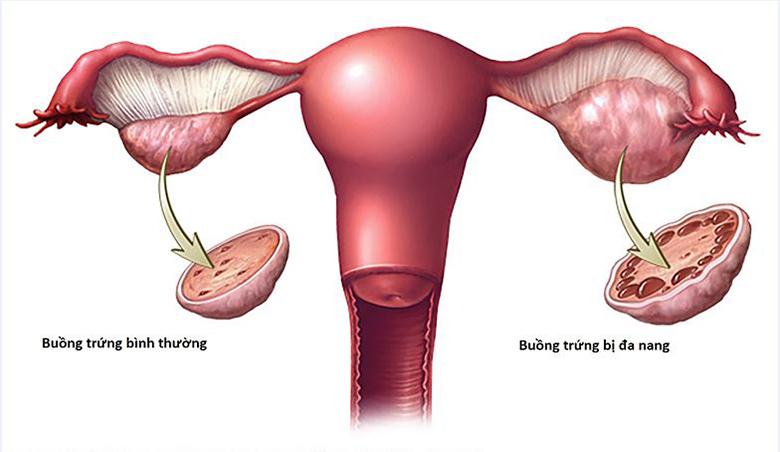 Làm thế nào để ngăn ngừa hội chứng buồng trứng đa nang?