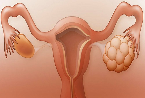 Làm thế nào để ngăn ngừa hội chứng suy giảm chức năng buồng trứng?