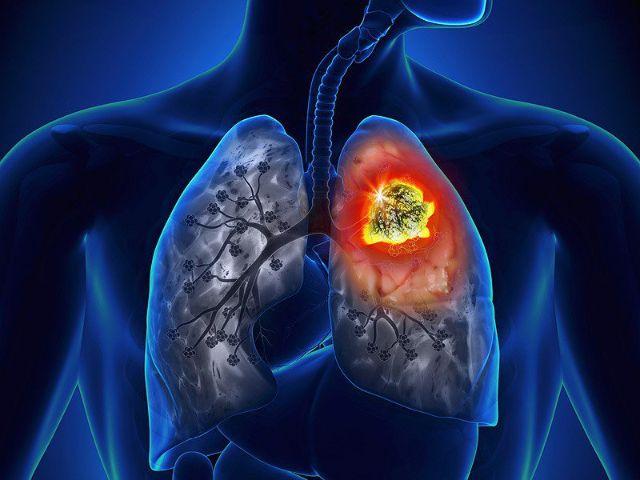 Làm thế nào để ngăn ngừa ung thư gan nguyên phát?