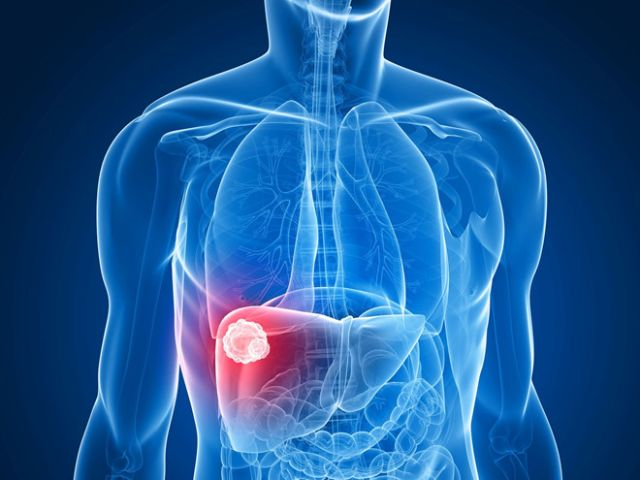 Làm thế nào để phân biệt và chẩn đoán ung thư gan nguyên phát?