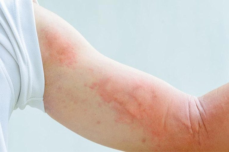 Làm thế nào để phòng tránh bệnh sán dây đường ruột?
