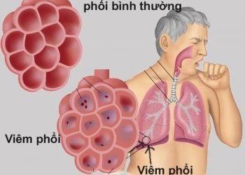 Nguyên nhân bệnh viêm phổi do adenovirus và triệu chứng