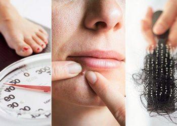 Hội chứng buồng trứng đa nang và những biểu hiện, triệu chứng, cách chữa trị