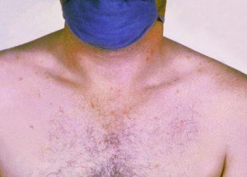 Paratyphoid – Sốt phó thương hàn gây tử vong cho người