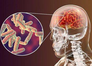 Tổng quan về bệnh viêm não tủy lan tỏa cấp tính