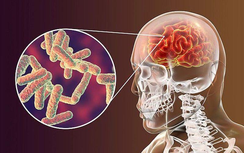 bệnh viêm não tủy