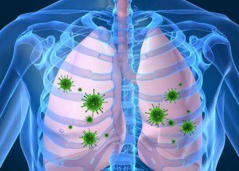 Tổng quan về bệnh viêm phổi do vi khuẩn