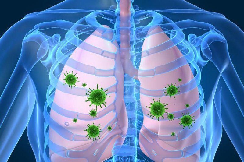 bệnh viêm phổi do vi khuẩn