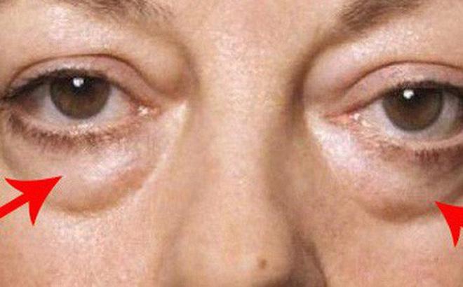 Trichinosis có thể gây ra những bệnh gì?