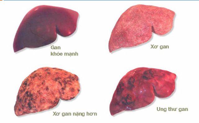 Ung thư gan nguyên phát có thể gây ra những bệnh gì?
