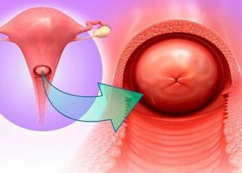 Bệnh viêm cổ tử cung cấp tính và những nguy hiểm cận kề