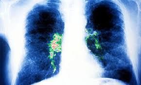 Viêm phổi do bệnh Legionnaires gây ra như thế nào?