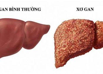 Xơ gan là gì? Các biến chứng nguy hiểm của bệnh