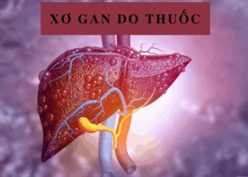 Xơ gan do thuốc và cách phân biệt, điều trị bệnh hiệu quả