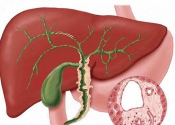 Xơ gan mật nguyên phát và những biện pháp ngăn ngừa