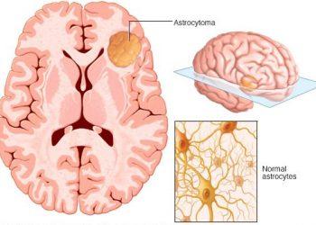Bệnh Astrocytoma là gì? Nguyên nhân, triệu chứng và cách điều trị