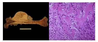 Các hạng mục kiểm tra cho u mô bào sợi lành tính của xương là gì?