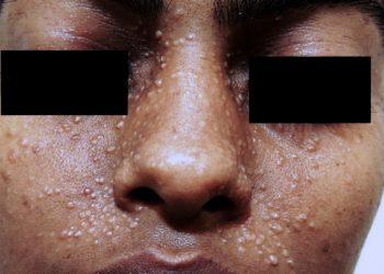 Trichoepithelioma là gì? Những thông tin mới nhất cho người chưa rõ