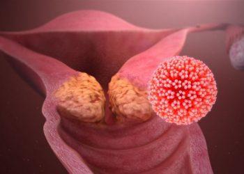 Bạch sản cổ tử cung là gì? Nguyên nhân và chế độ ăn uống