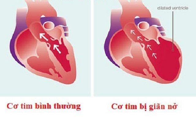 Bệnh cơ tim chu sinh là gì?
