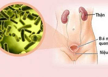 Bệnh lao bàng quang là gì? Nguyên nhân và cách chữa