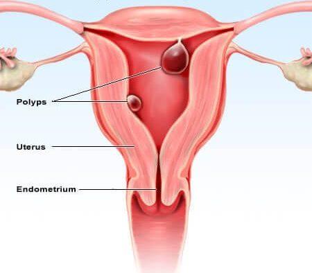Bệnh polyp tử cung