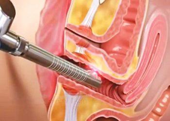 Bệnh tân sinh nội bì âm hộ là gì? Những thông tin cần biết