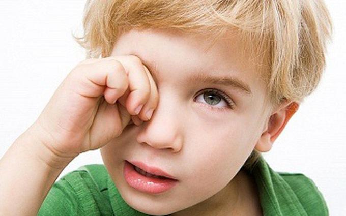 bệnh tăng nhãn áp ở trẻ em