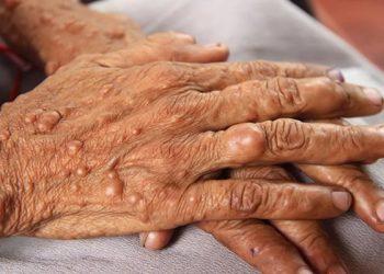 Bệnh u sợi huyết dạng hyaline vị thành niên là gì? Khám phá ngay
