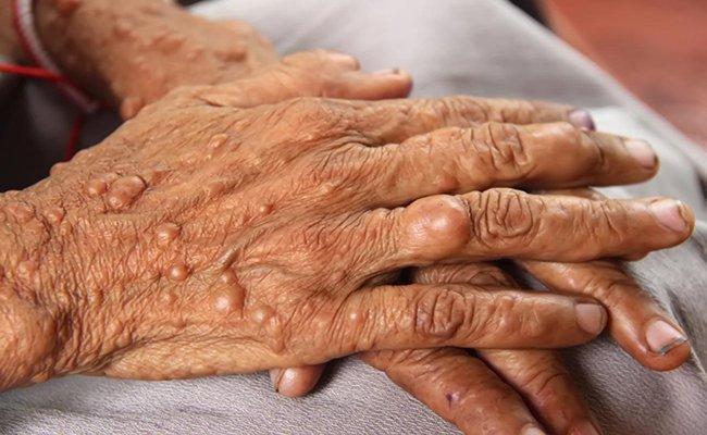 bệnh u sợi huyết dạng hyaline vị thành niên