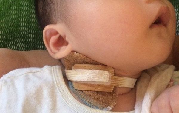 bệnh u xơ kỹ thuật số ở trẻ sơ sinh