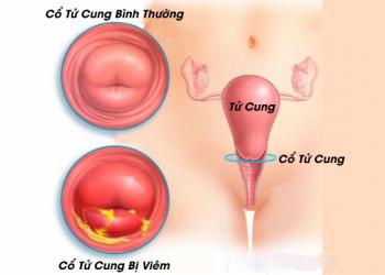 Bệnh viêm cổ tử cung do amebic là gì? Nguyên nhân và cách trị