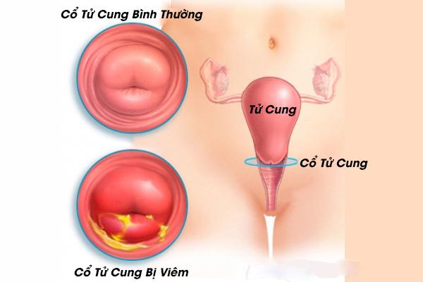 Bệnh viêm cổ tử cung do amebic là gì?