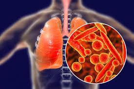bệnh viêm phổi giả phổi