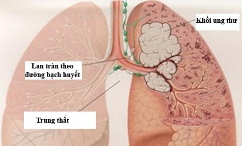 Các hạng mục giám định đối với khối u di căn phổi là gì?