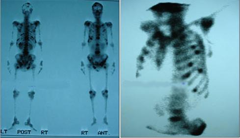 Các hạng mục giám định khối u di căn xương là gì?