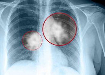 Khối u phổi là gì? Những thông tin về căn bệnh thường gặp