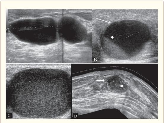 Các hạng mục khám bệnh u mô sợi ác tính của âm hộ là gì?