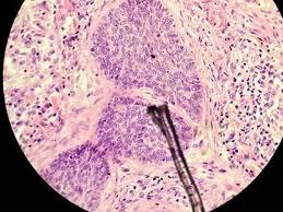 Các hạng mục khám bệnh ung thư biểu mô tuyến vi mô là gì?