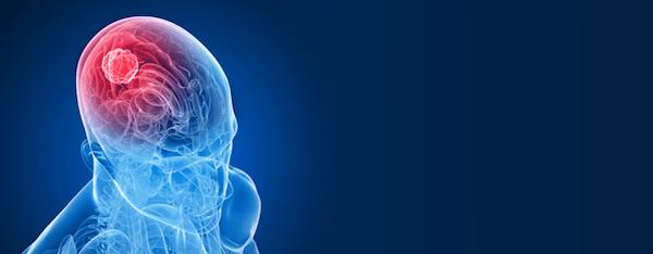 Các hạng mục kiểm tra bệnh u nhú đám rối màng mạch ở trẻ em là gì?
