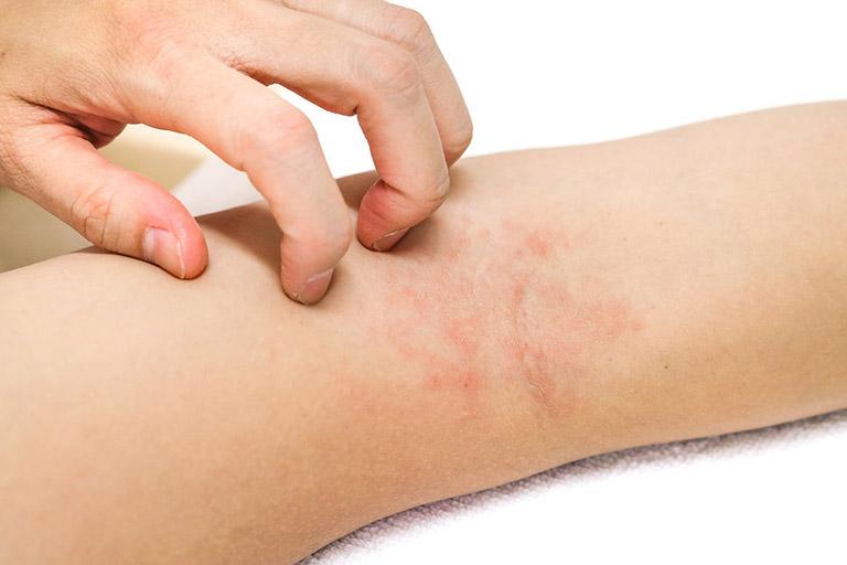 Các hạng mục kiểm tra cho bệnh sarcoidosis ở trẻ em là gì?