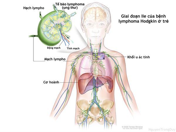 Các hạng mục kiểm tra cho bệnh u lympho nguyên phát ở âm đạo là gì?