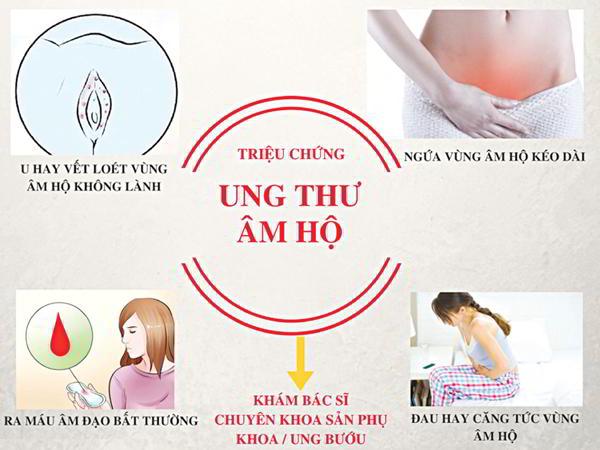 Các hạng mục kiểm tra cho u lympho ác tính âm hộ là gì?