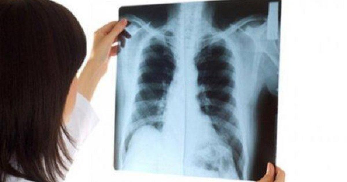 Các hạng mục kiểm tra di căn màng ngoài tim là gì?