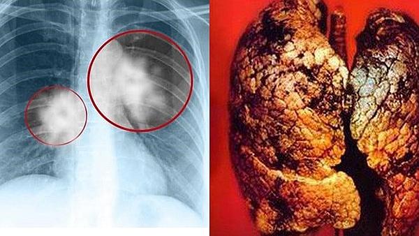 Các hạng mục kiểm tra đối với bệnh viêm phổi do bức xạ là gì?