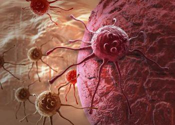 Lipoma tế bào hình thoi là gì? Những thông tin cần biết về nó