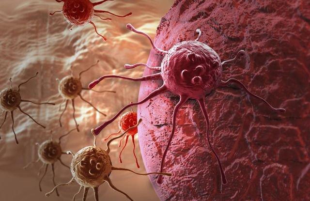 Các hạng mục kiểm tra đối với lipoma tế bào trục chính là gì?