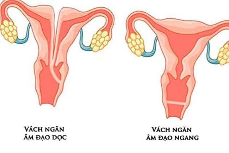 Các hạng mục kiểm tra đối với u nội bì âm hộ là gì?