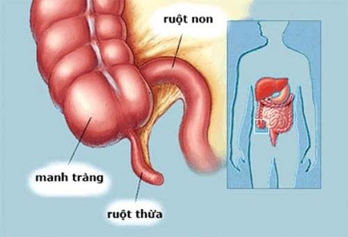 Các hạng mục kiểm tra đối với u xơ ruột non là gì?